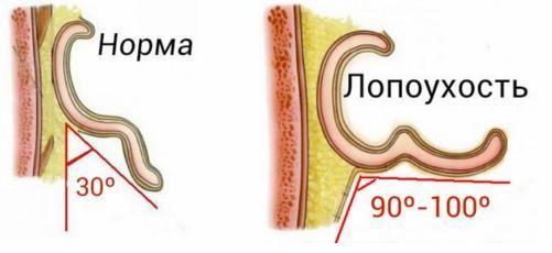 Астенозооспермия методы лечения
