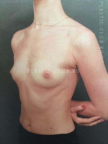 Маммопластика отзывы пациентов