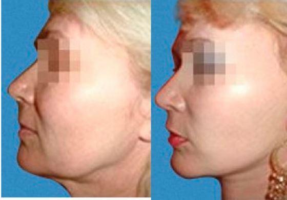Пластическая хирургия цицишвили давид фото пластическая хирургия цены уменьшить уши