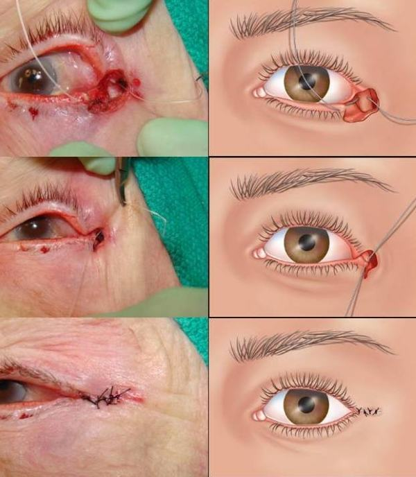 Пластическая хирургия века глаза