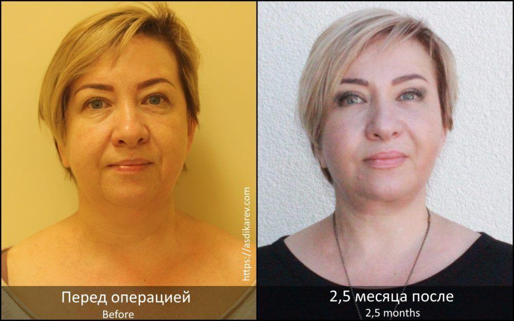 Блефаропластика с подтяжкой средней зоны лица