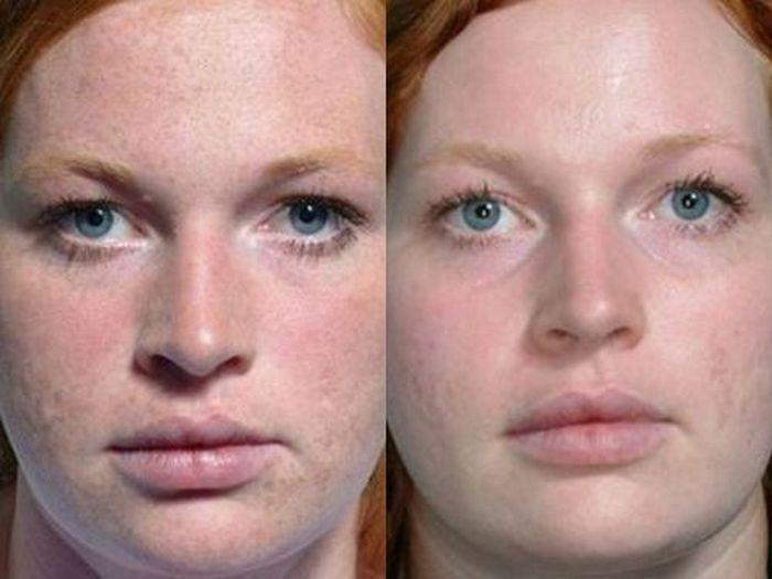 Карбоновый пилинг лазером фото до и после