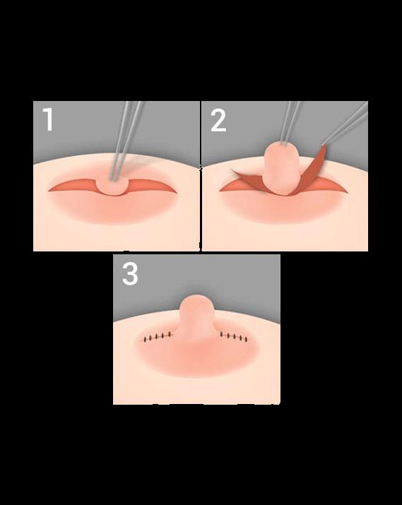 необычные ореолы груди