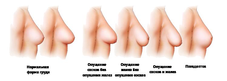 Самый длинный сосок грудей