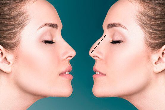 Особенности ринопластики кривого носа