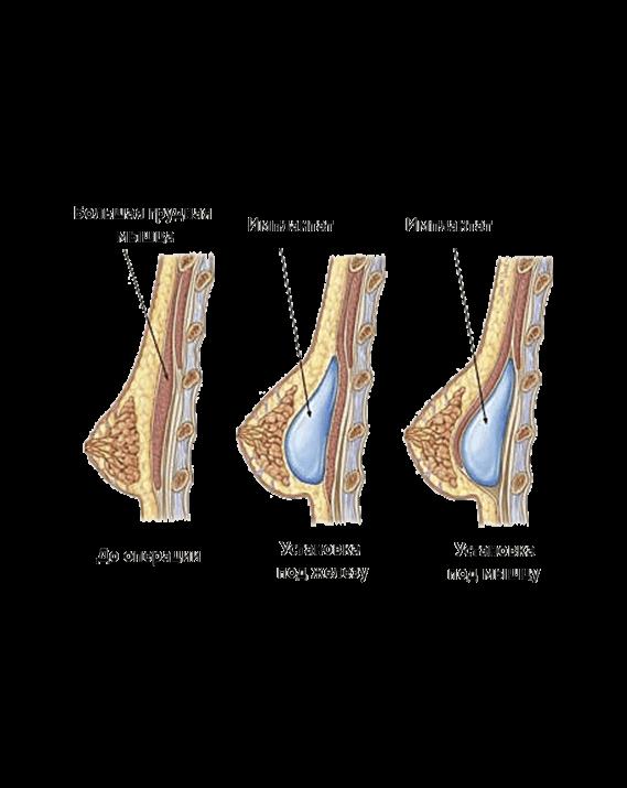 подтяжка груди стоимость с установкой имплантов