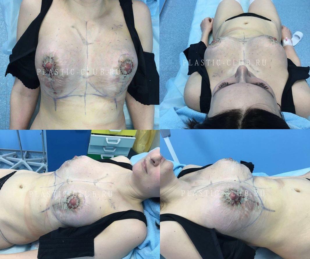 Пластик операция на груди 28