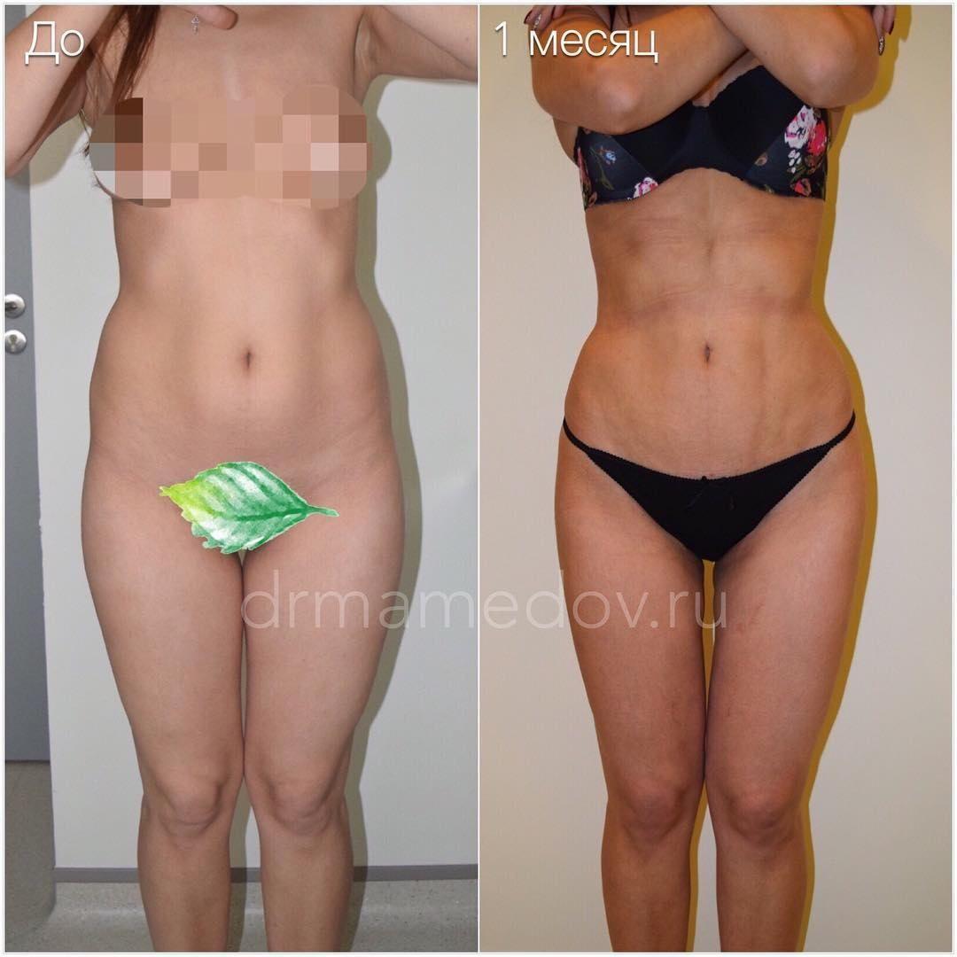 Алена Кравец до и после пластики  фото и результаты операций