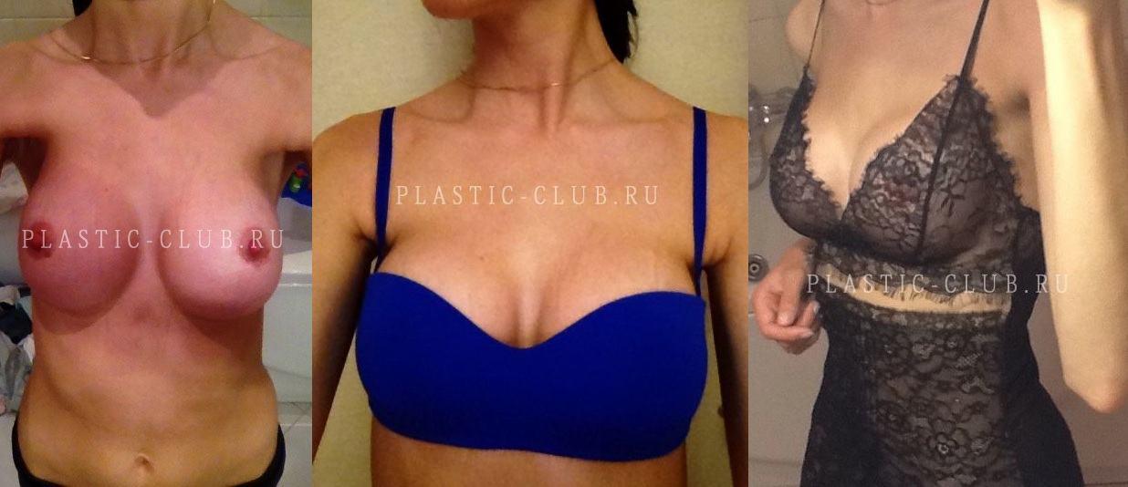 Неделя после пластики груди