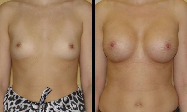 увеличение груди под молочную железу