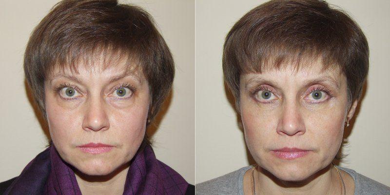неудачная блефаропластика до и после фото